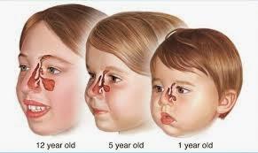 Obat Sinusitis Pada Anak