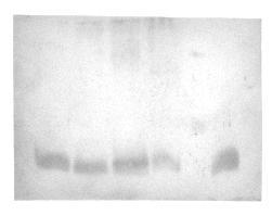 protein band on western blot
