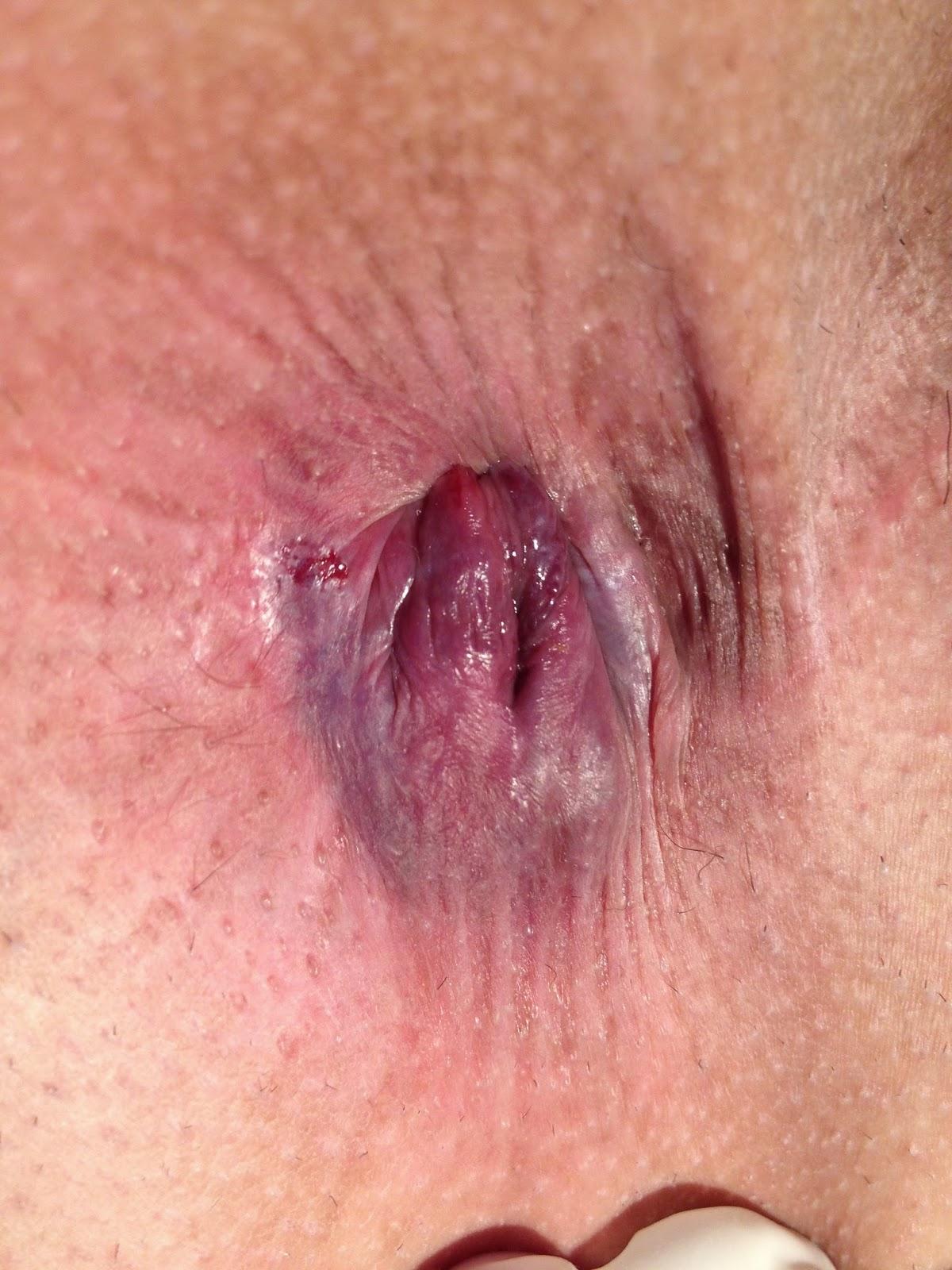 Foto des weiblichen anal Anus