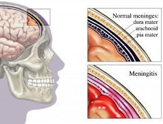 Todo sobre La meningitis bacteriana