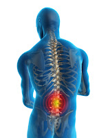 spinal-stenosis-treatment-with-spine-surgery