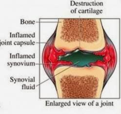 Ilustrasi Rematik, Penampang Tulang