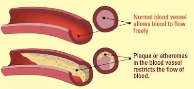Cara Mengurangi Pengerasan Arteri