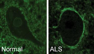Cell Transportation Discovery Could Yield ALS Treatment