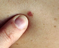 age spots or skin cancer