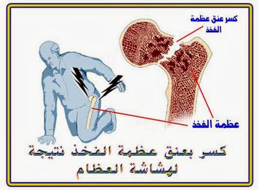 هشاشه العظم ,كسر عظمه الفخد ,الم هشاشه العظام ,شخص مصاب بهشاشه العظام ,المرض الصامت ,http://www.sihati.com/2013/11/All-about-osteoporosis.html                               صامت