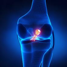 Penawar sakit lutut dan sendi