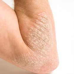 TYPES OF MAJOR SKIN DISEASES Eczema ~ Major Diseases Human Face