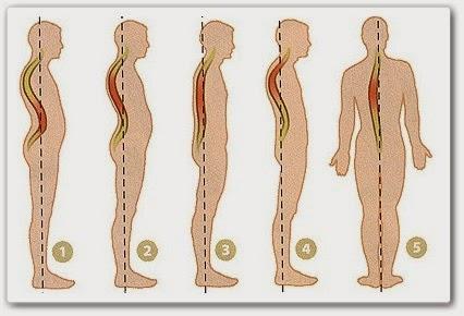 Глисты человека симптомы лечение