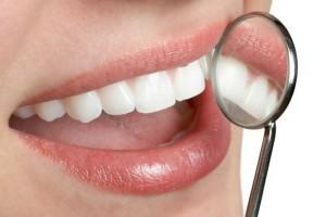 Cara Menghilangkan Karang Gigi Hitam dengan Cepat Secara Alami