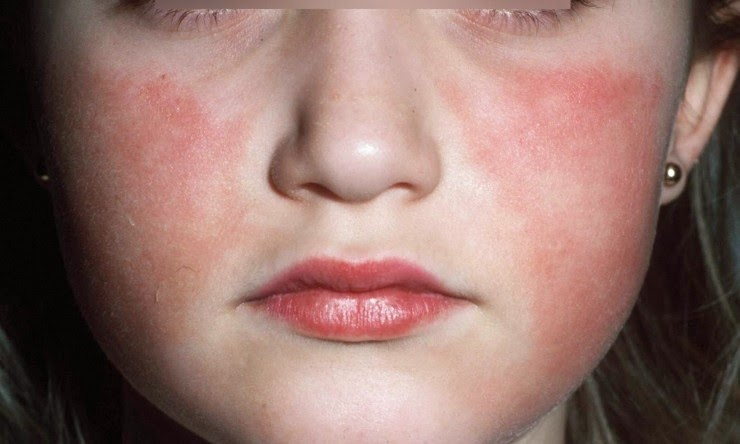Fifth Disease In Children And Adults | Health And Beauty