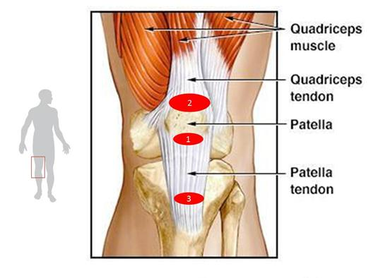 Patellar tendonitis jumpers knee ask my pt advertisements ccuart Choice Image