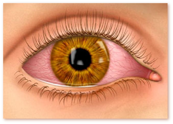 Ochiul rosu