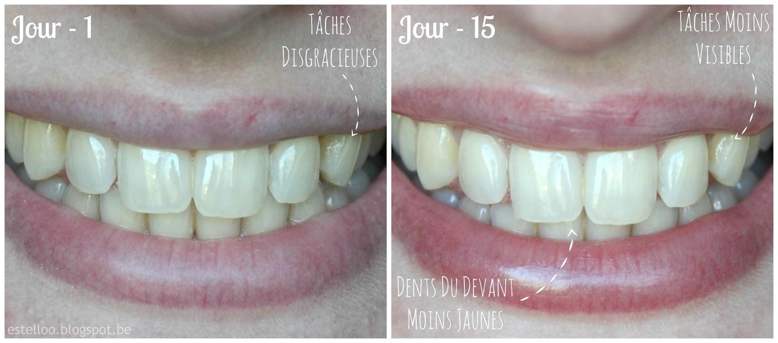 bicarbonate de soude dents tous les jours