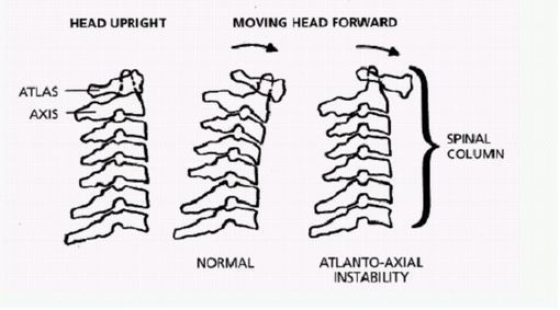 Atlanto Axial Instability And Children on head of pressure to feet