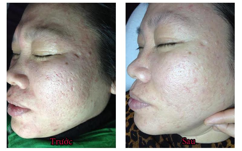 Hình ảnh thực tế khách hàng đã sử dụng Vieskin Collagen