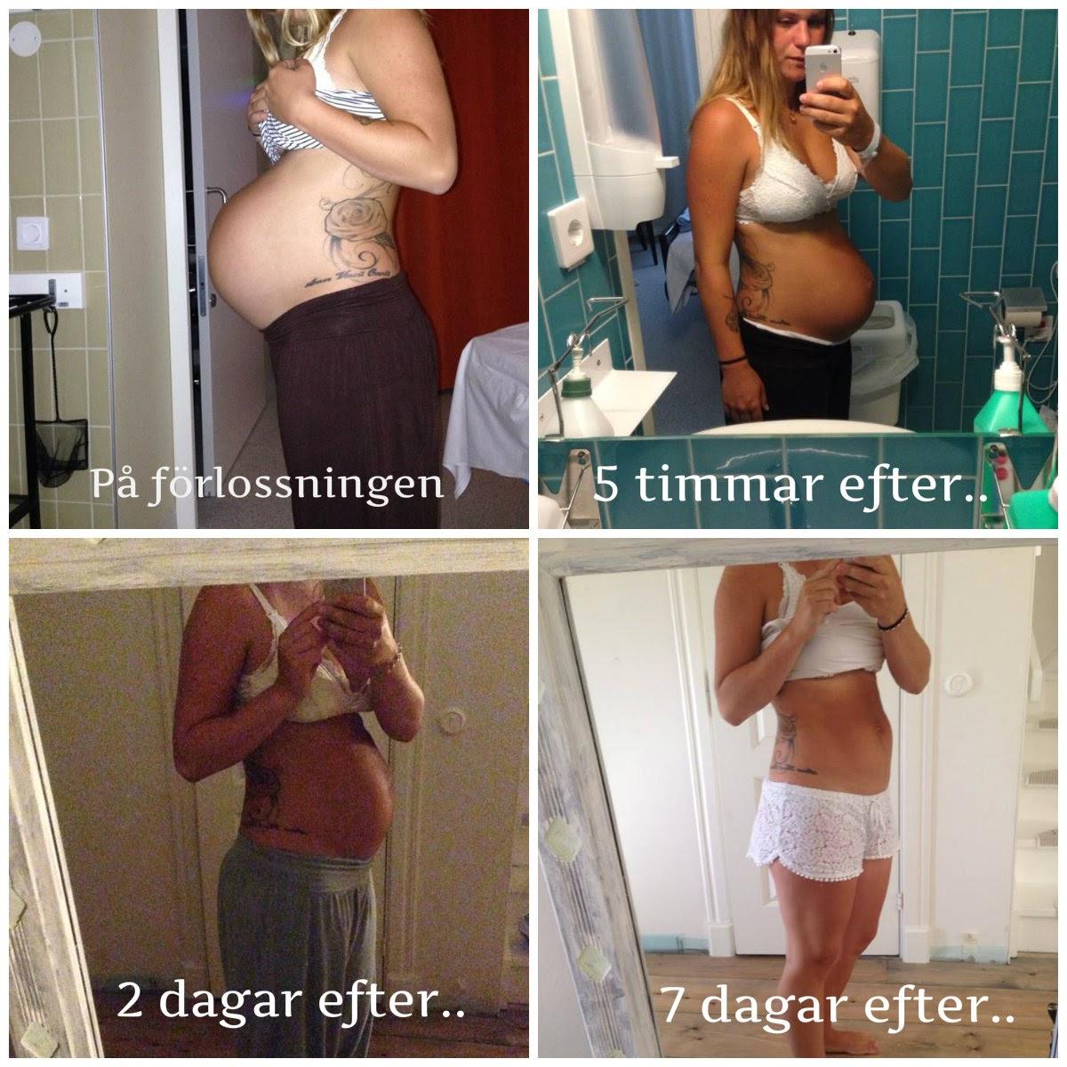 slapp mage efter graviditet