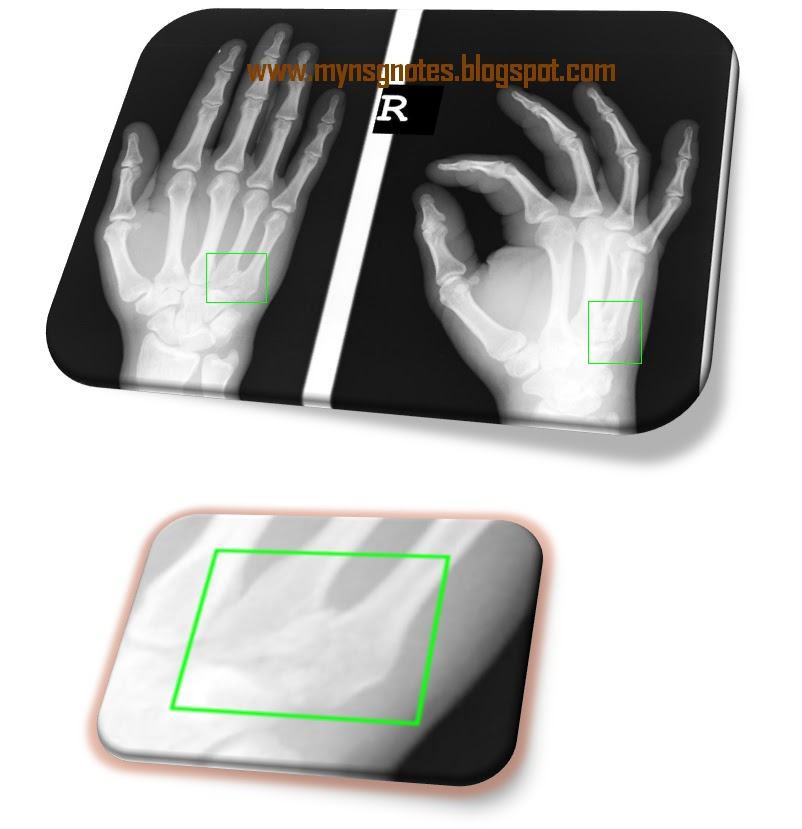 Metacarpal base fractures-2.bp.blogspot.com