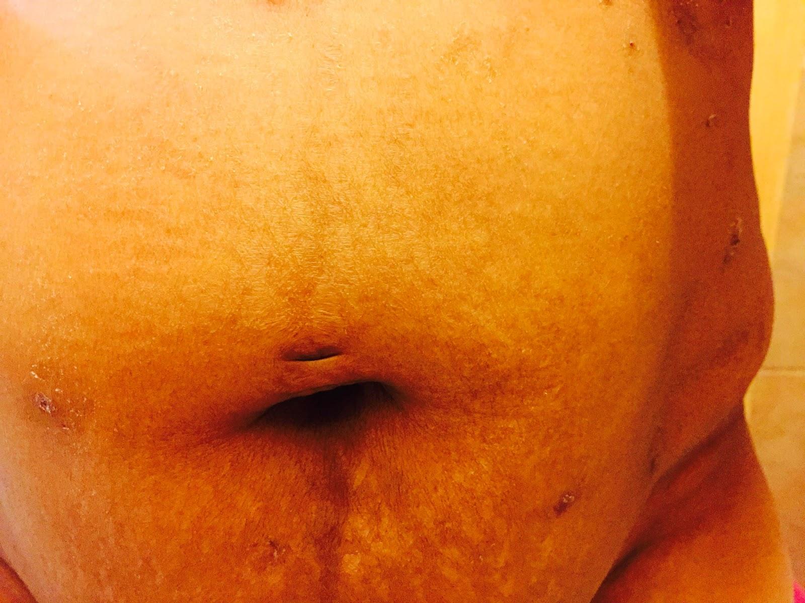 Belly Button Hernia