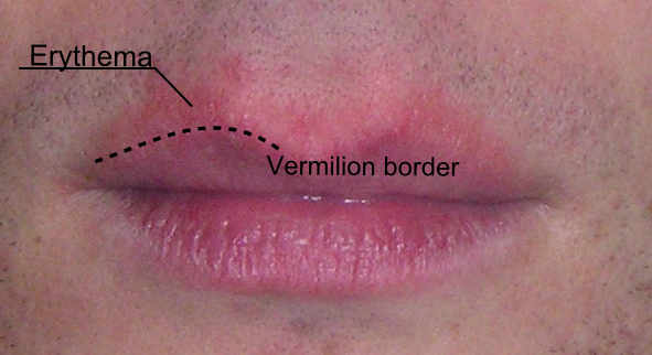 Lip Dermatitis Causes - Doctor answers on HealthTap