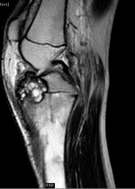 chondroblastoma radiology - photo #14