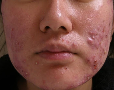 ANTIBIOTICS MAY HELP SOME PEOPLE WITH ACNE