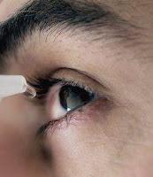 penyebab penyakit mata