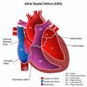Tanda Penyebab Jantung Bocor Anak