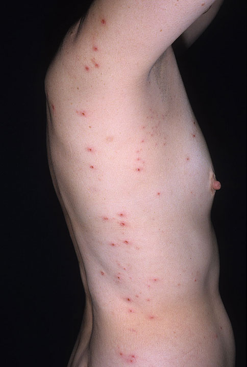 Hives (Urticaria) in Adults: Condition, Treatments, and ...
