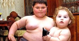Obesitas pada Anak: Kenali Tanda-tanda, Faktor Penyebab, dan Cara Menanganinya