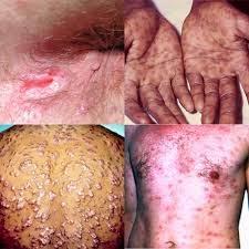 obat sipilis, sakit siilis, kencing terasa sakit, pengobatan sipilis, sipilis pria, sipilis wanita