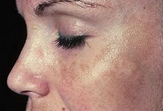 manchas oscuras en la cara