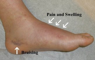 Pain On Top Of The Foot When Walking