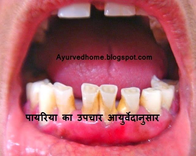 Pyria Ka Upchaar , पायरिया का इलाज , Pyria Ka Desi Ilaj