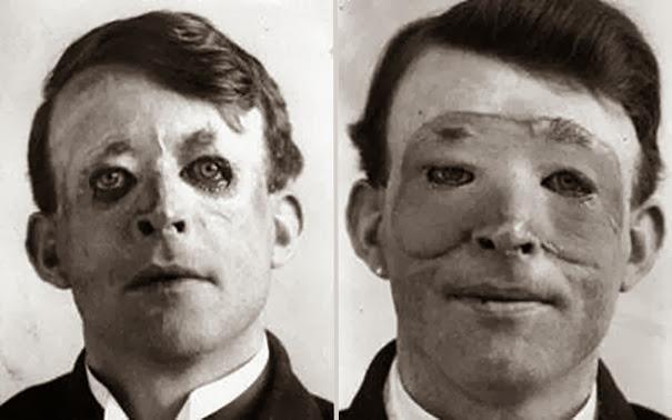 Уолтер Ео, один из первых кто подвергнулся продвинутой пластической хирургии и пересадке кожи, 1917 г.