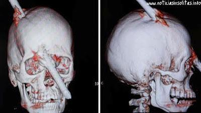 cráneo atravesando cabeza