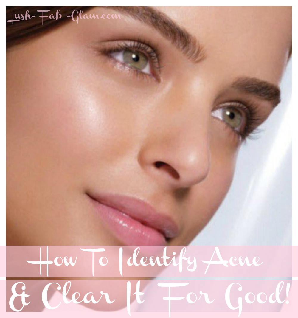 Say goodbye to acne and blemishes with these fab tips.