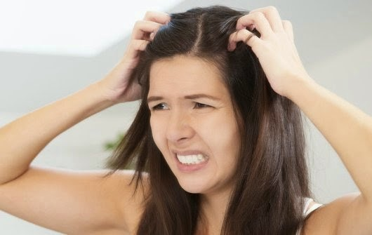 Cara Alami Menghilangkan Kutu Rambut Dengan Cepat