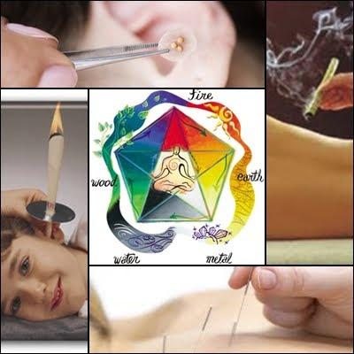 MTC - Medicina Tradicional Chinesa