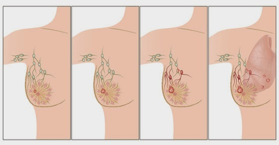 Antiperspirant and breast cancer
