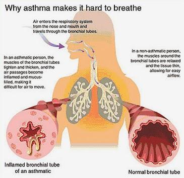 Blog : anglais IFSI: Maladies (4) – Asthme