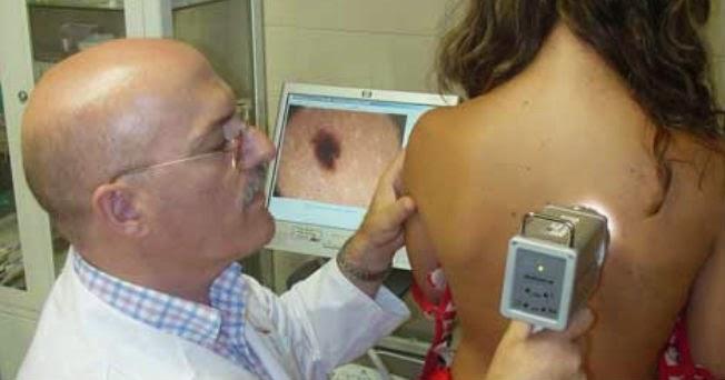 http://cancerde-piel.blogspot.com/2014/09/cancer-de-piel-senales-de-alerta.html