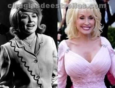 Dolly Parton antes y después