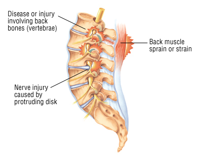 back pain back pain can be a symptom of many different illnesses and