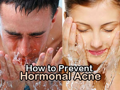 how to prevent hormonal acne