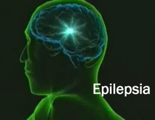 Epilepsia definición
