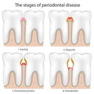 Periodontal Health and Heart Disease