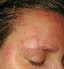 Aciclovir pommade ophtalmique - Synthroid hair loss does stop