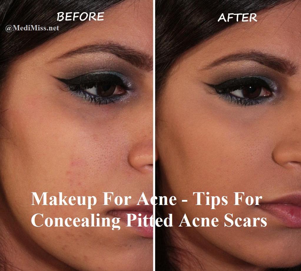 Scar skin makeup