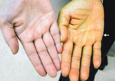 Penyebab Hepatitis A dan Pencegahannya